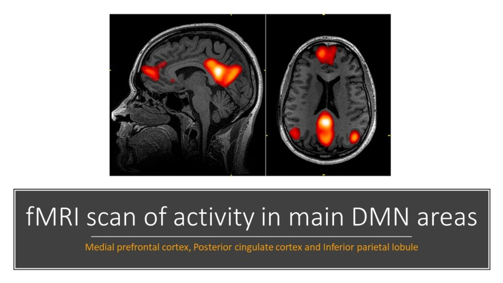 Meditation - fMRI scan of non attentional cognitive processes activity in main default mode network brain areas